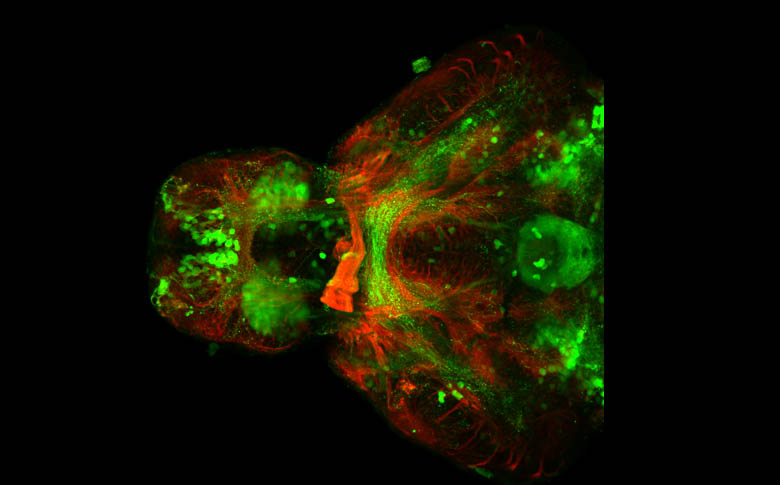 Ventral view of a 4dpf Tg(ET16:GFP) embryo.