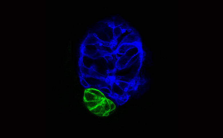 Pineal and parapineal in Tg(flh:GFP) embryo.