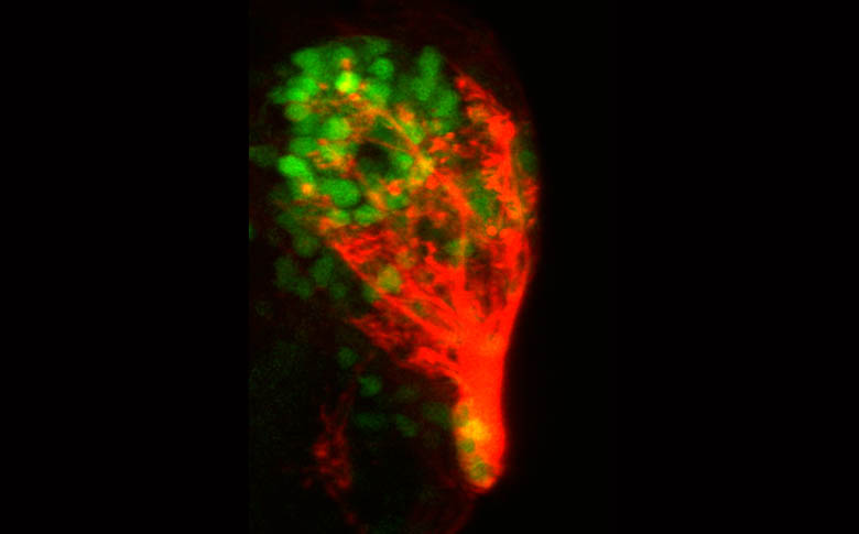 Olfactory bulb(Tg(sox11a:GFP) and nerve(DiI)