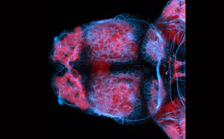Dorsal view of the forebrain of a zebrafish larva showing axons (blue) and neuropil (pink).