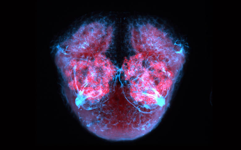 Frontal view of the forebrain of a zebrafish larva showing axons (blue) and neuropil (pink).