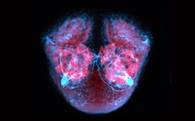 Frontal view of telencephalic neuropil