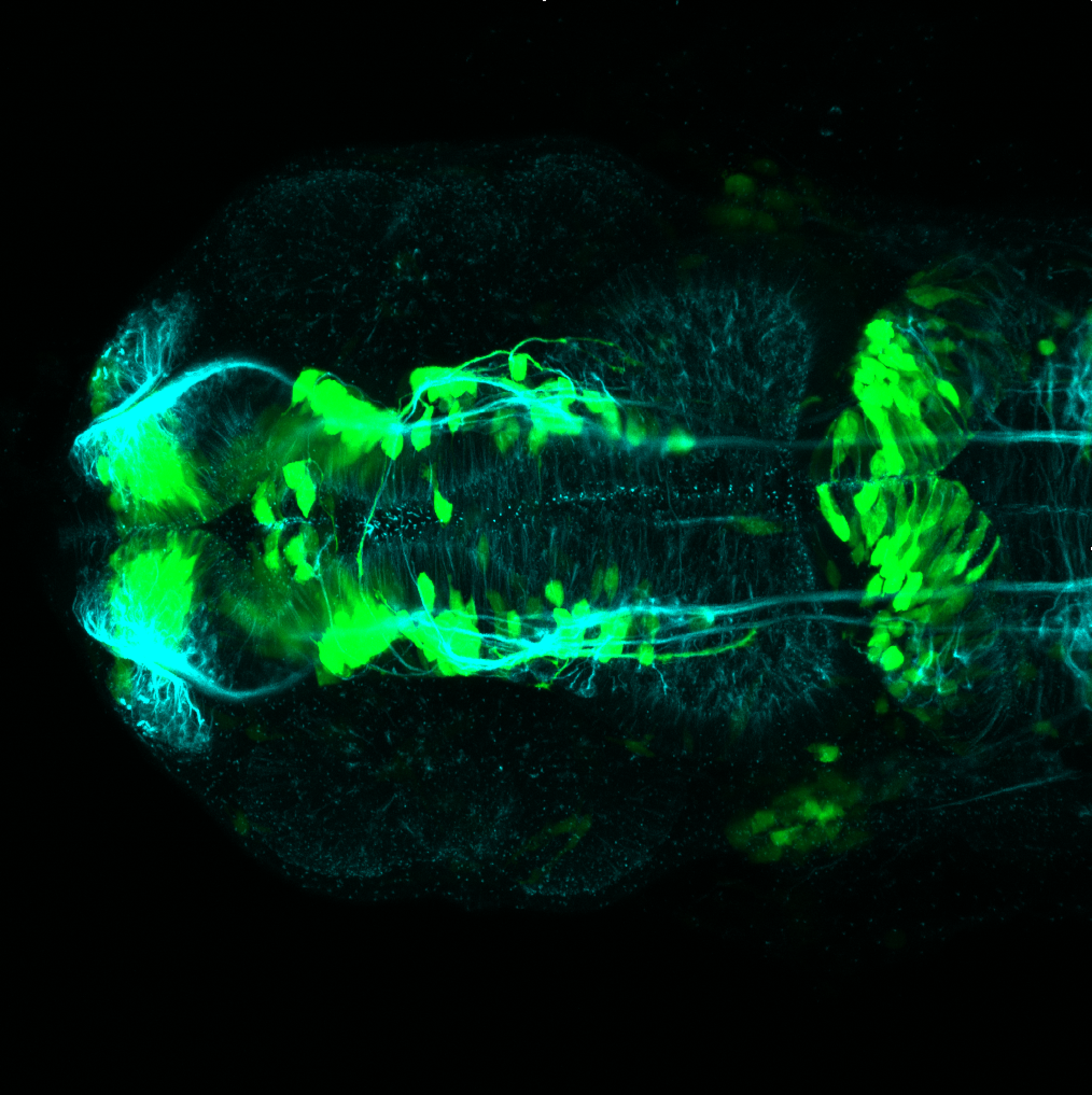 24hpf dorsal view of dlx:GFP with tubulin