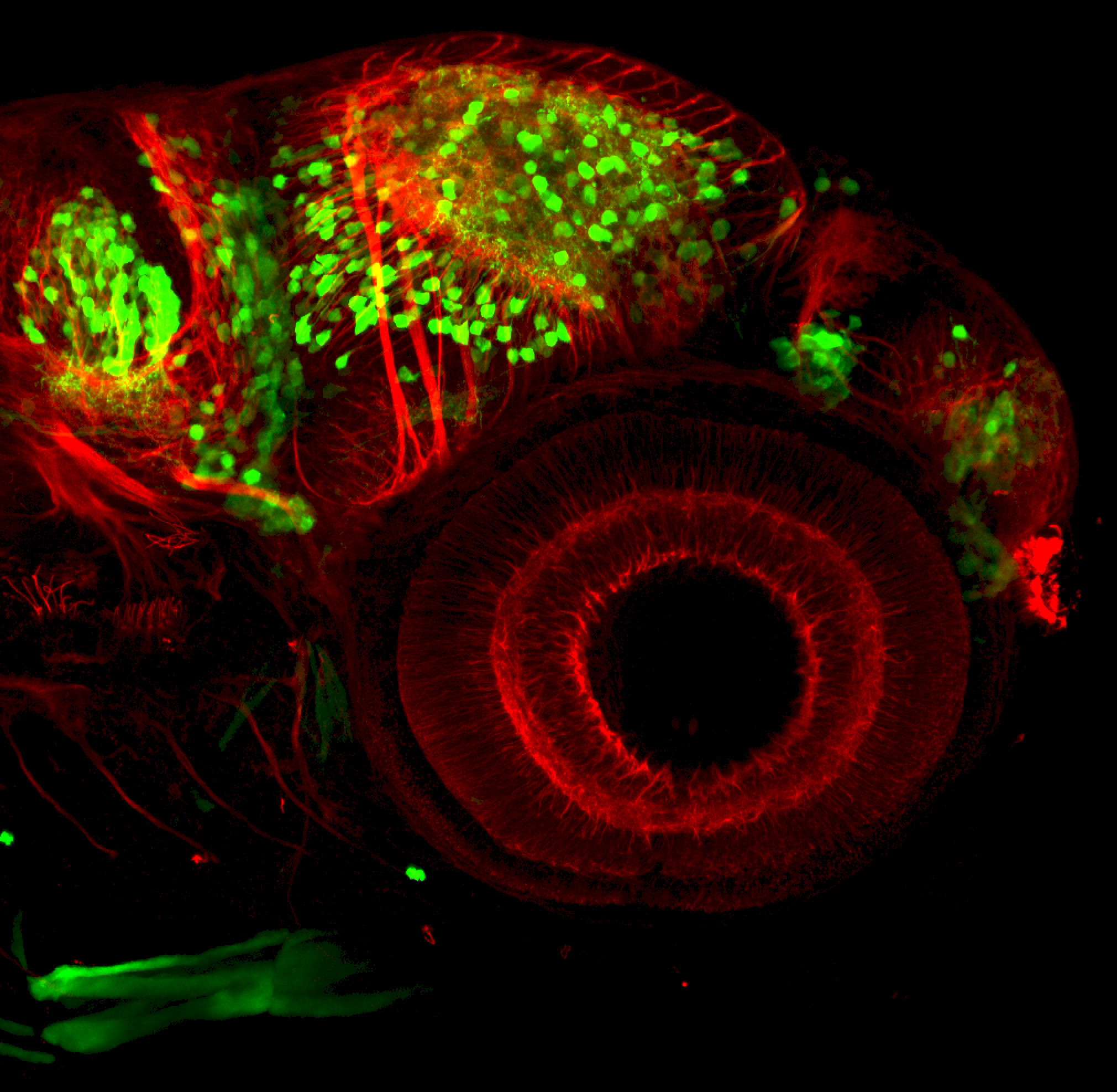 3dpf lateral view of dlx:GFP in forebrain