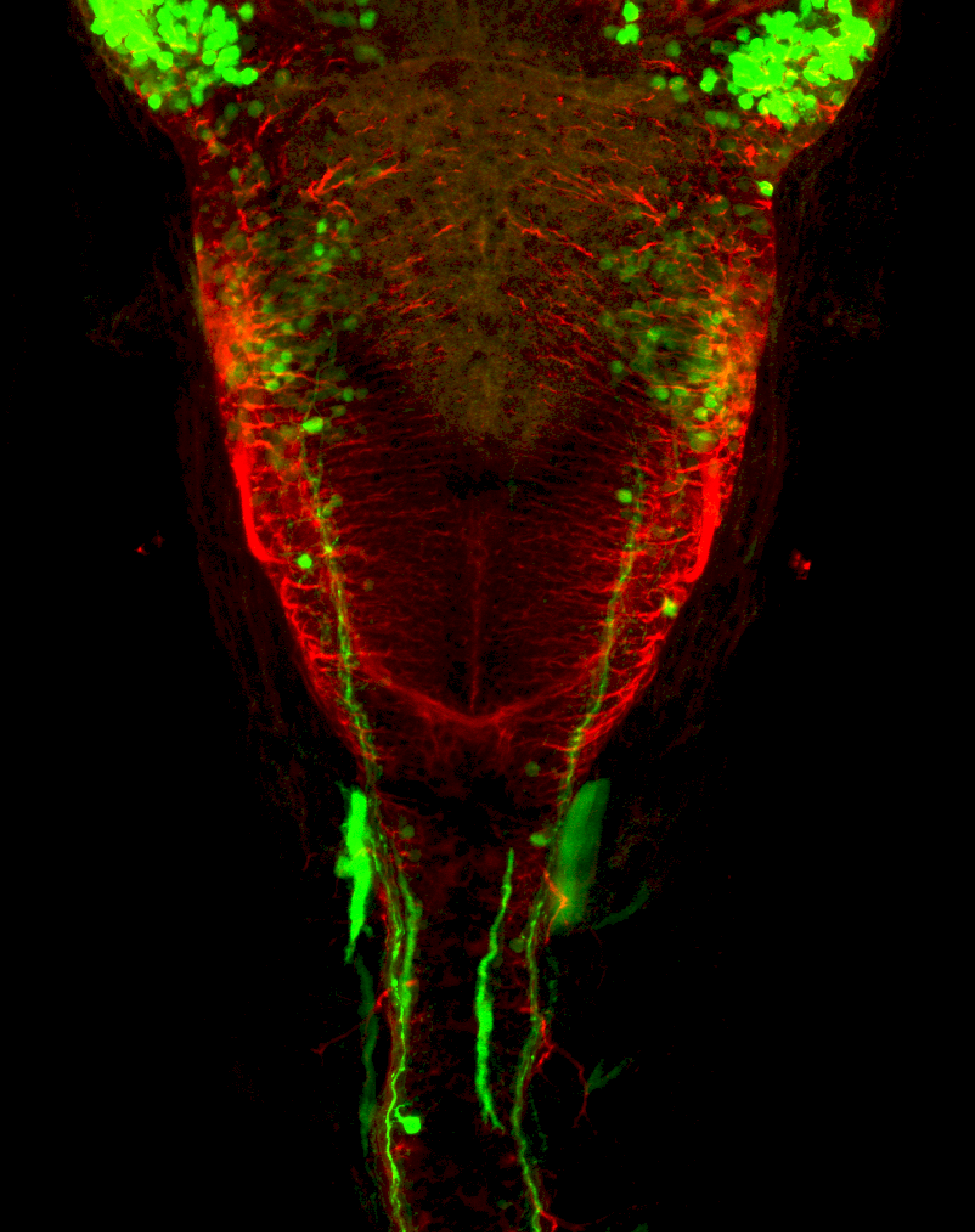 3dpf dorsal view of dlx:GFP hindbrain