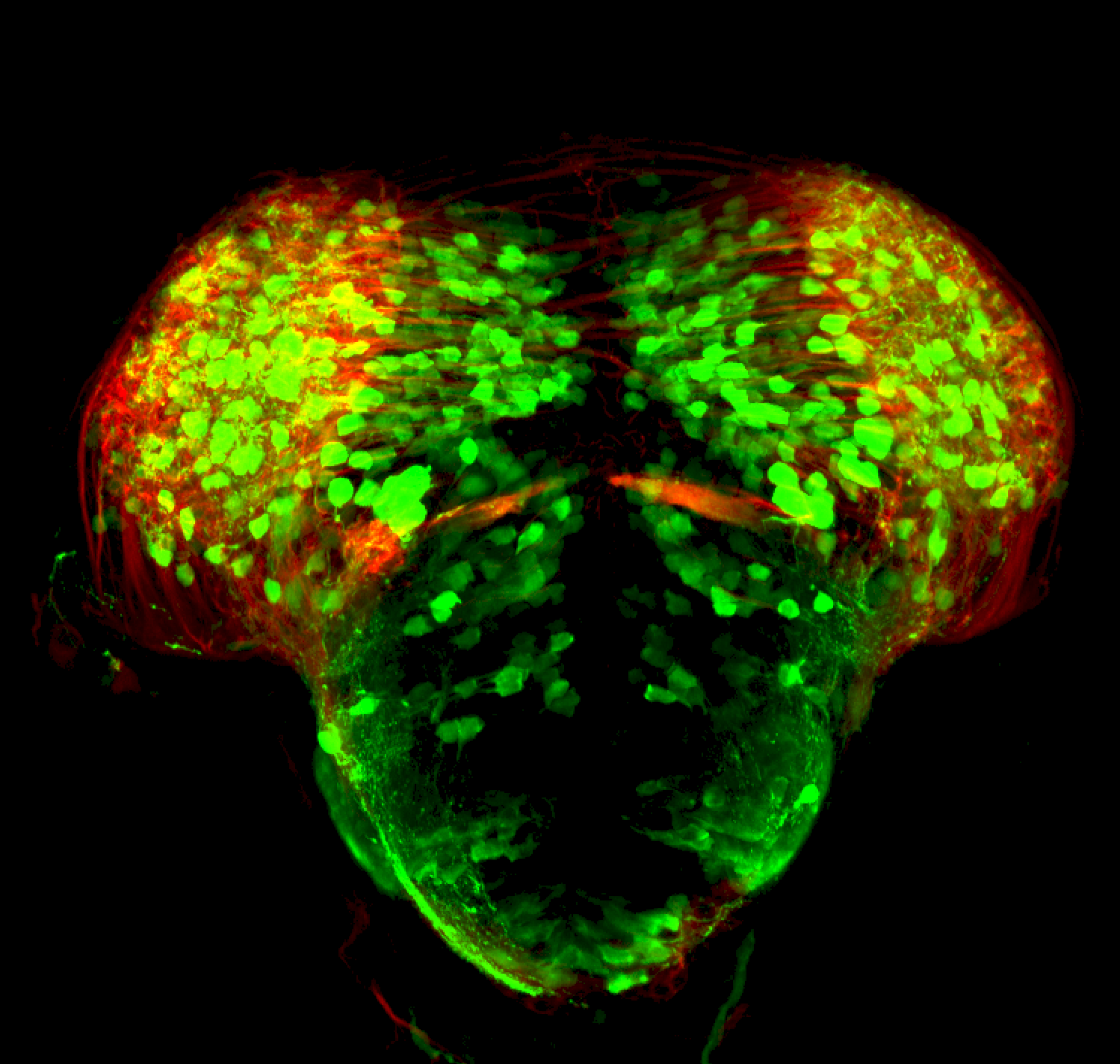 3dpf thick section of dlx:GFP through midbrain/diencephalon