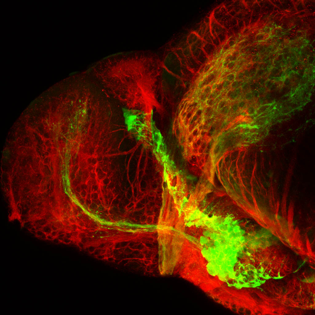 shh:GFP and tubulin. 4 dpf lateral forebrain
