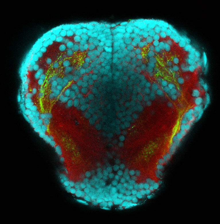 Frontal transverse z-slice through the telencephalon of shh:GFP