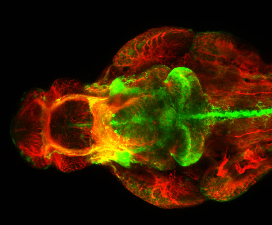 shh:GFP, tubulin 4dpf ventral view