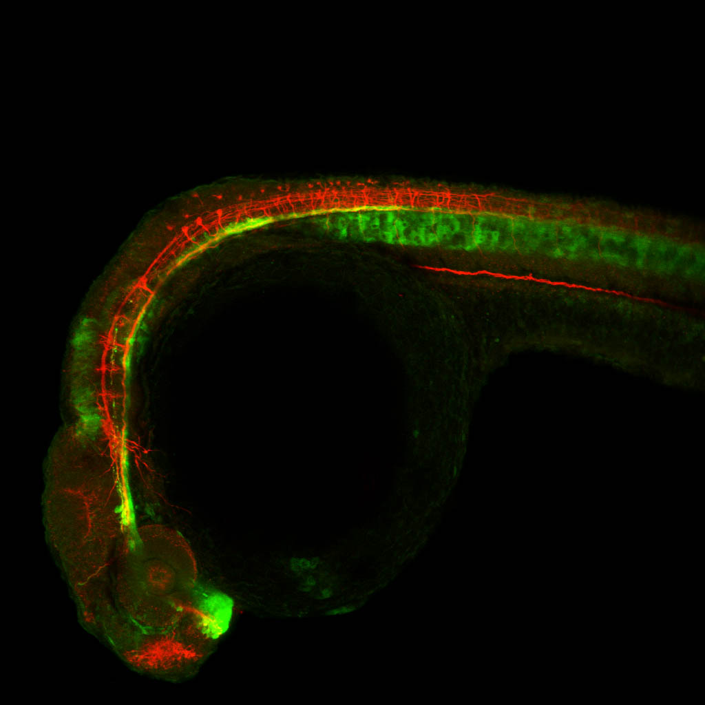 shh:GFP and tubulin 24hpf lateral view