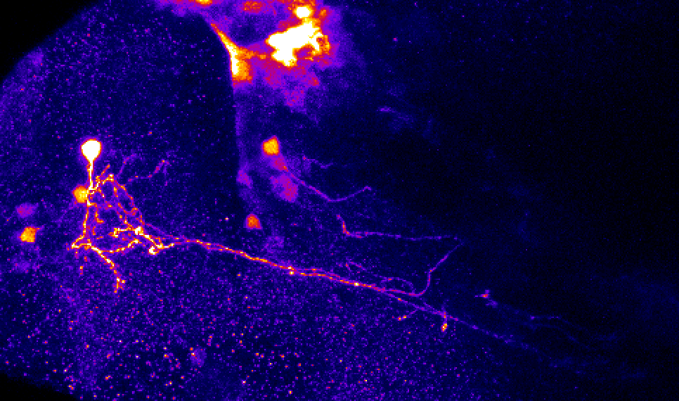 pallial neuron in sox3h10 lateral view at 5dpf