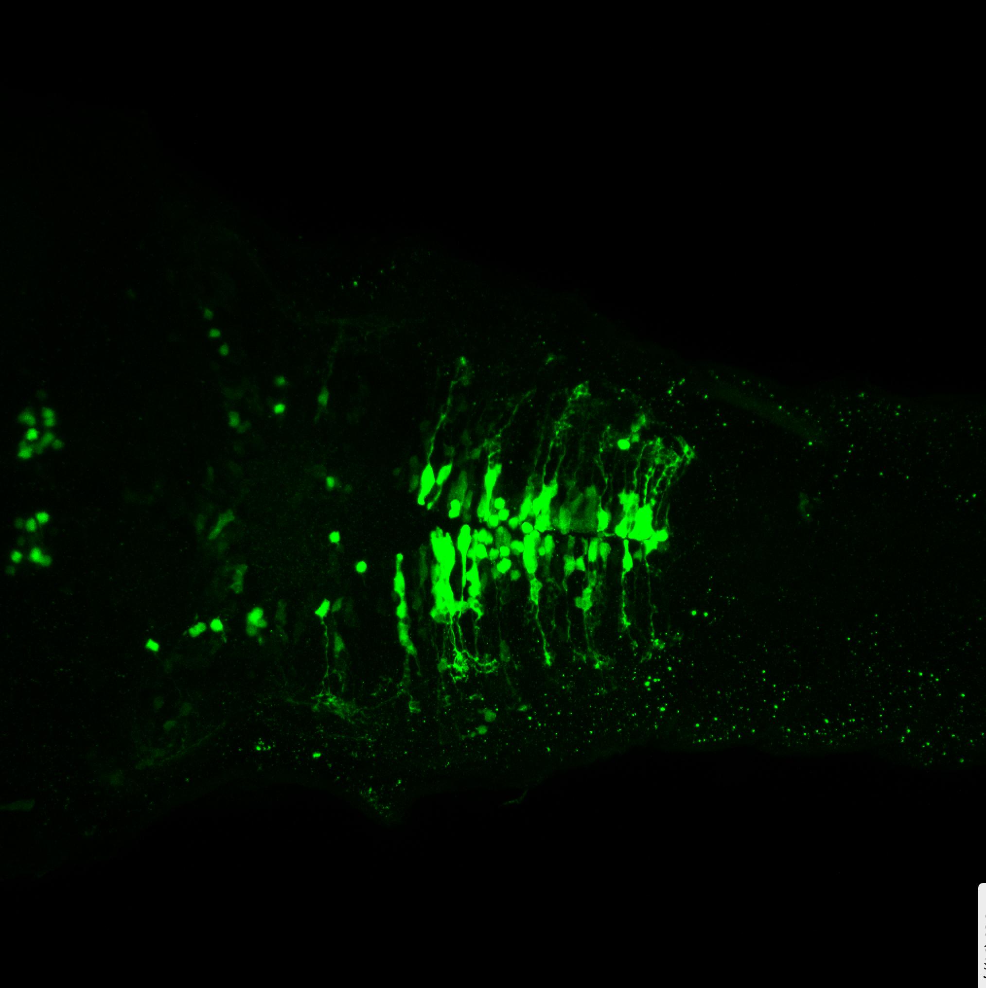 sox3h10:EGFP dorsal view of hindbrain at 5dpf