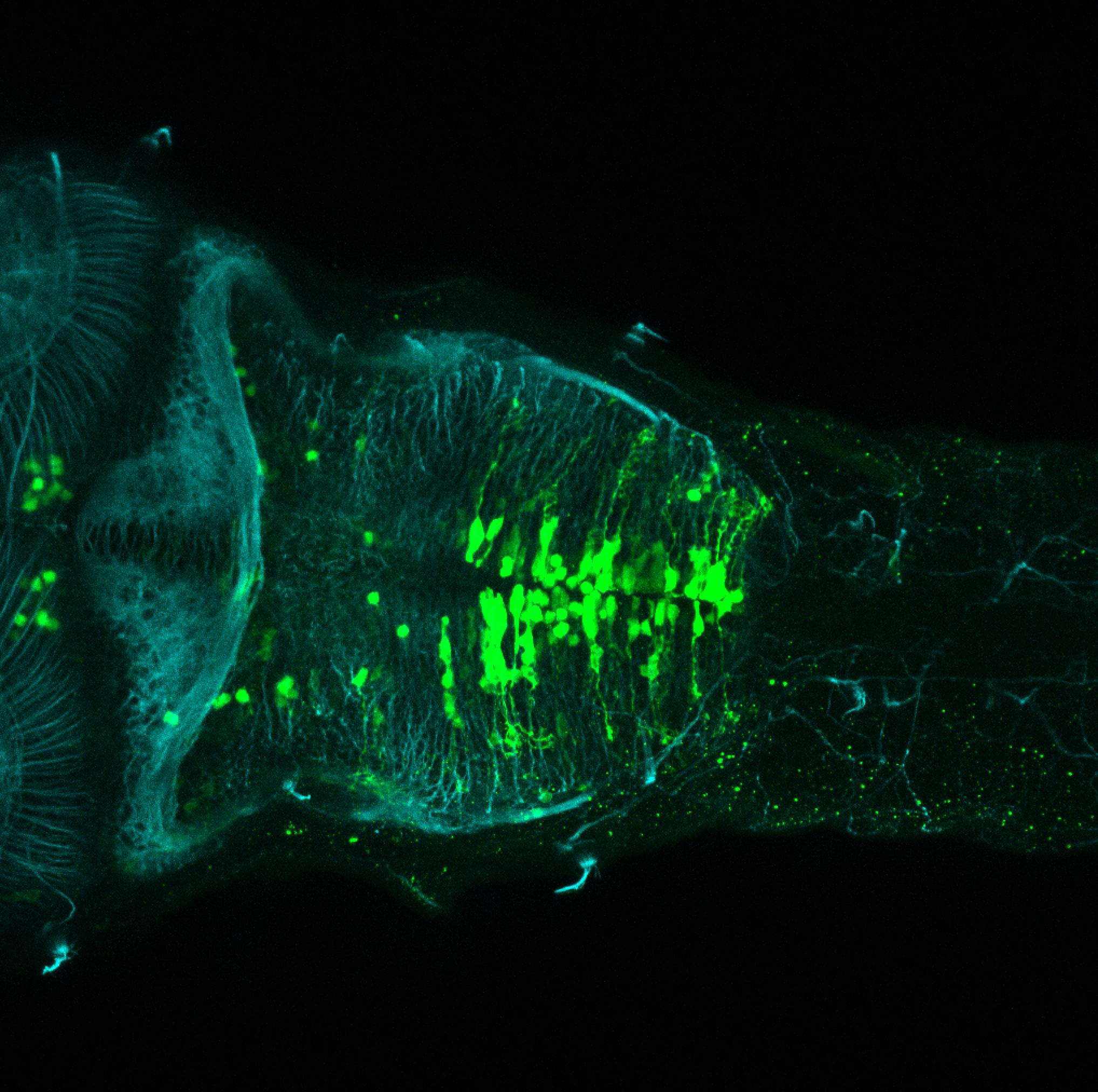 sox3h10:EGFP and tubulin dorsal view of hindbrain at 5dpf