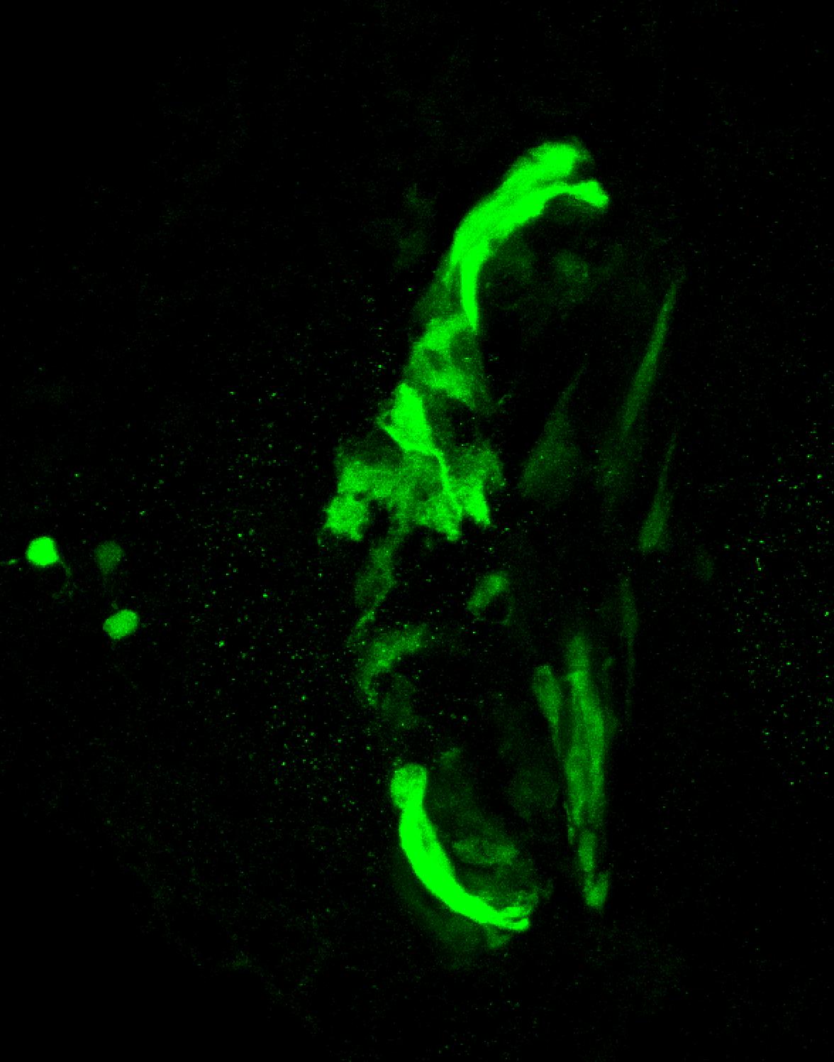 sox3h10:EGFP dorsal diencephalon at 5dpf