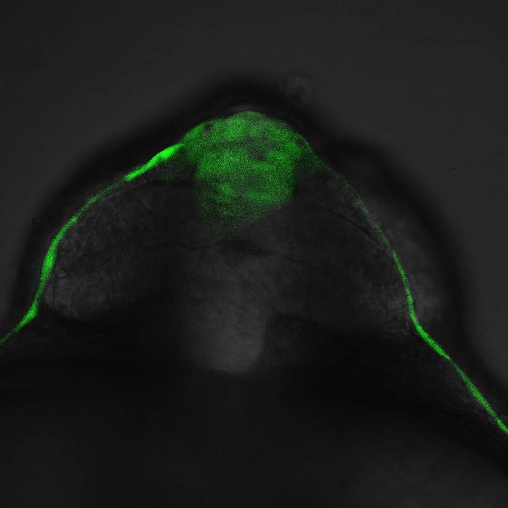 ET33:EGFP frontal view