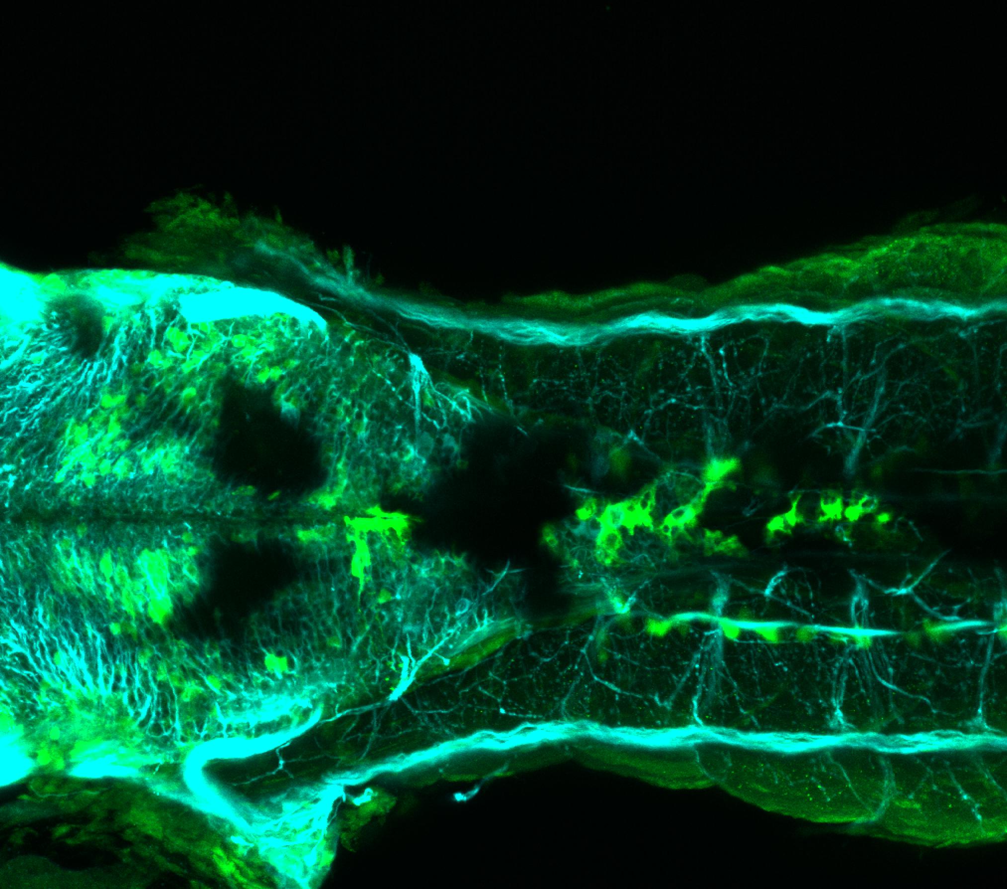 TG44:EGFP and tubulin dorsal view at 4dpf