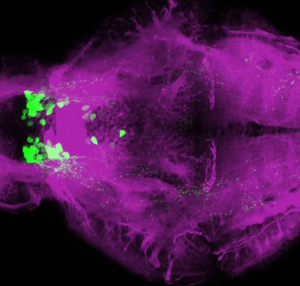 Ventral view of 4dpf Tg(oxt:GFP) with tubulin