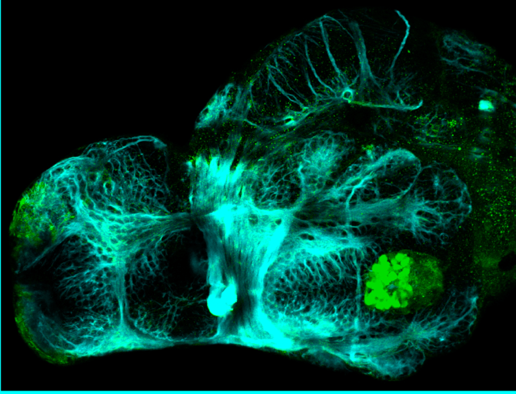 3dpf ventral view parvalbumin and tubulin(cyan)