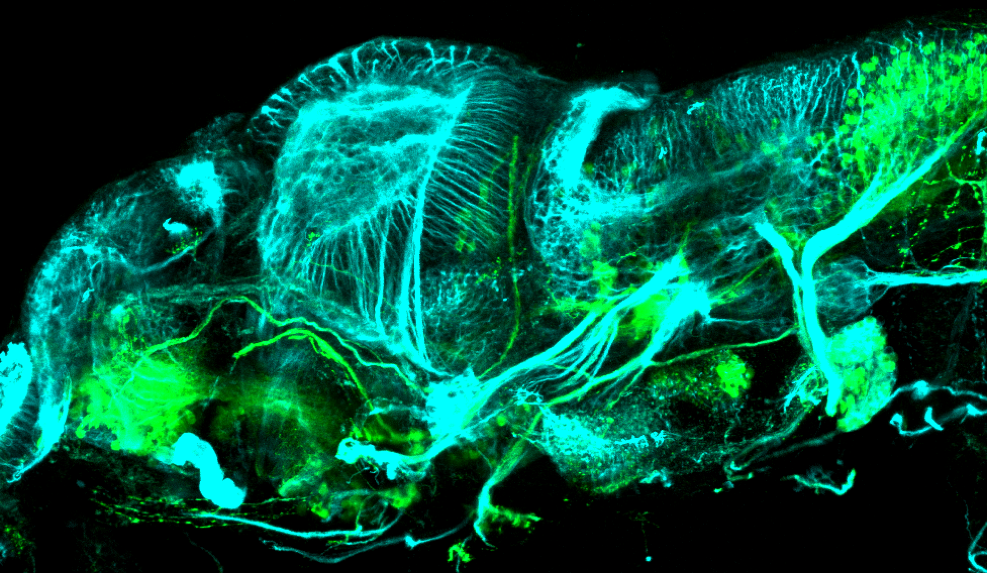 isl1:GFP lateral 4dpf with tubulin(cyan)