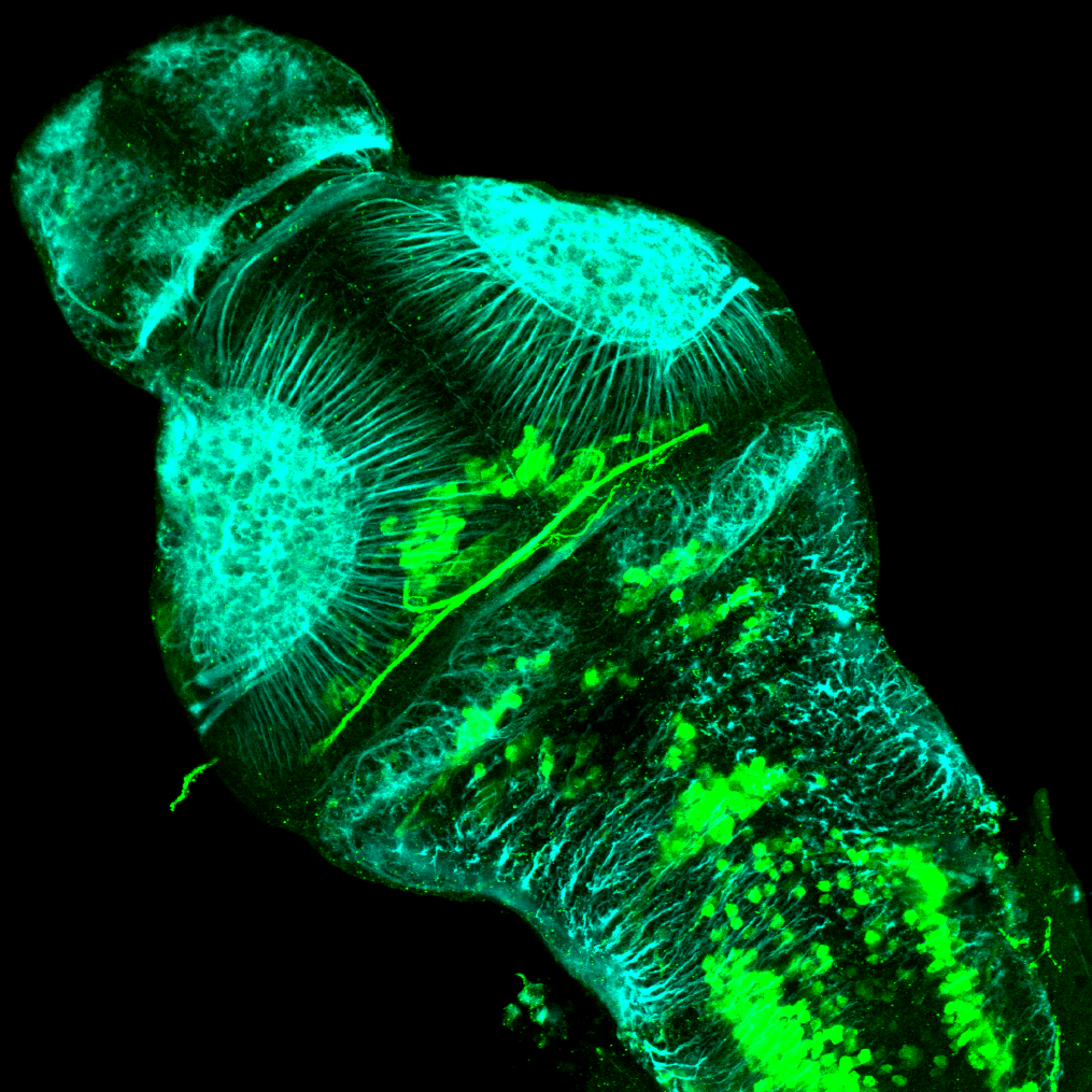 isl1:GFP 3dpf dorsal with tubulin(cyan)