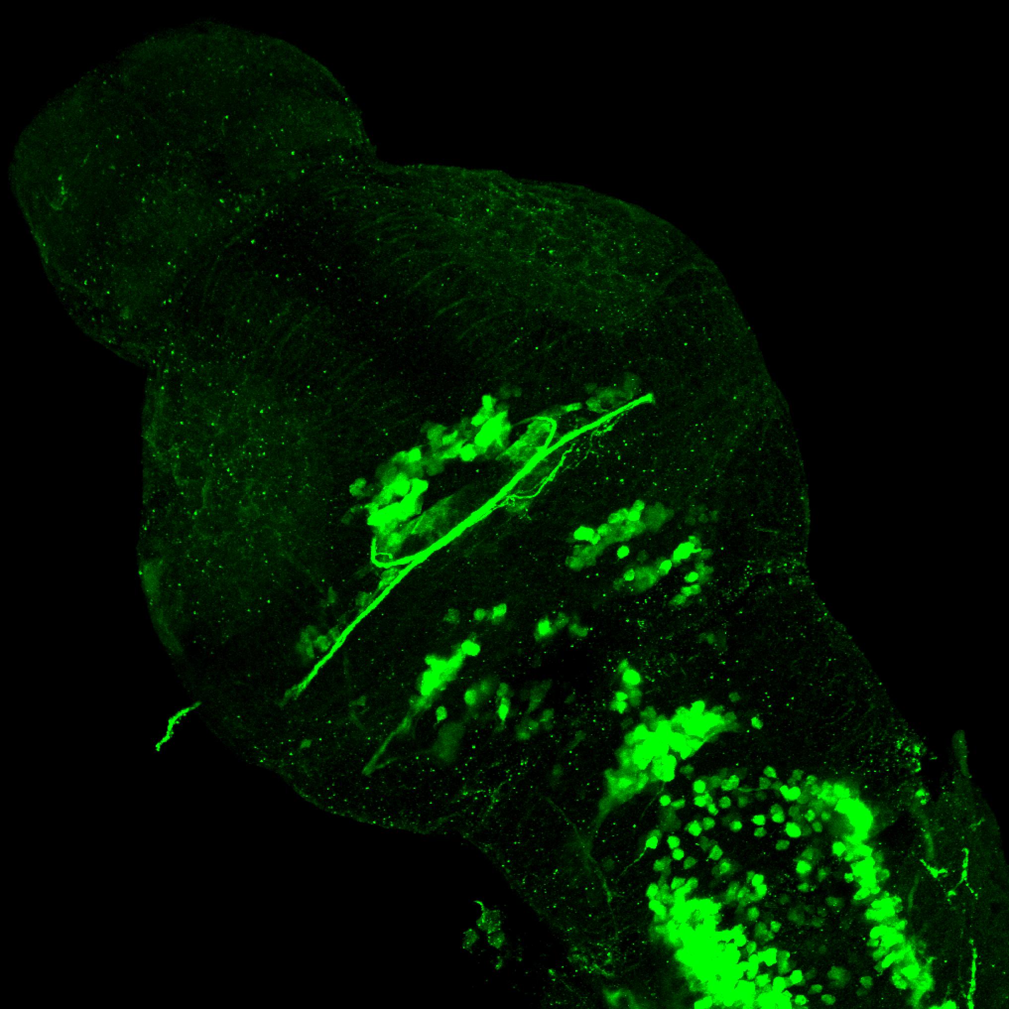 isl1:GFP 3dpf dorsal