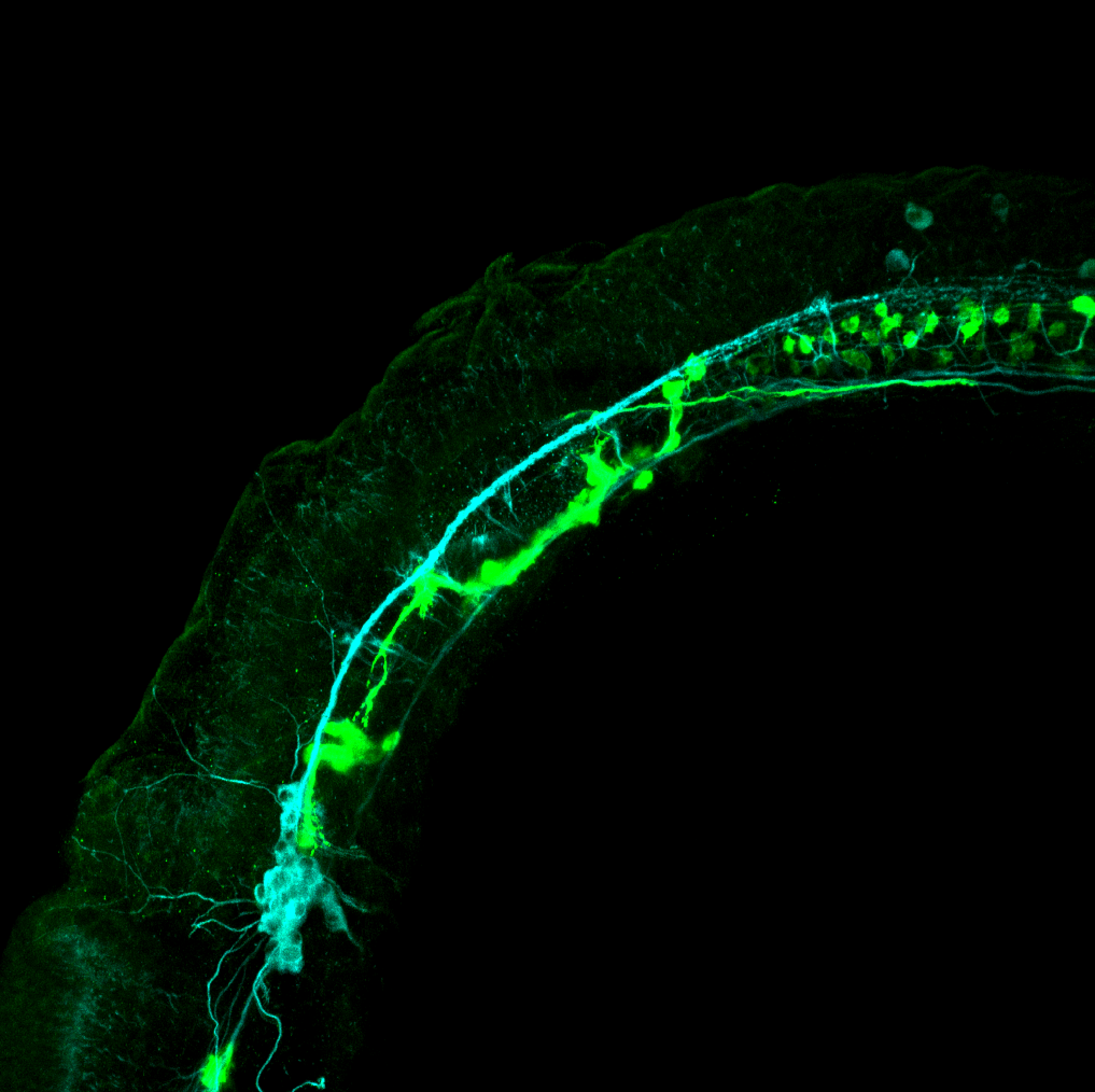 isl1:GFP lateral 1dpf with tubulin (cyan)