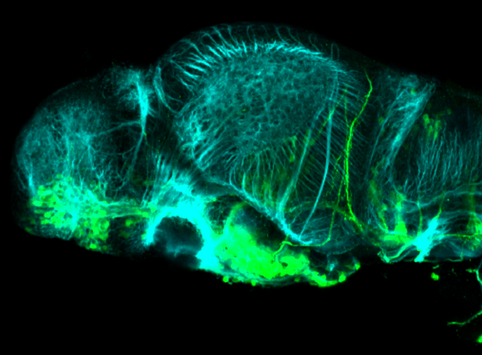 isl1:GFP 3dpf lateral forebrain with tubulin(cyan)