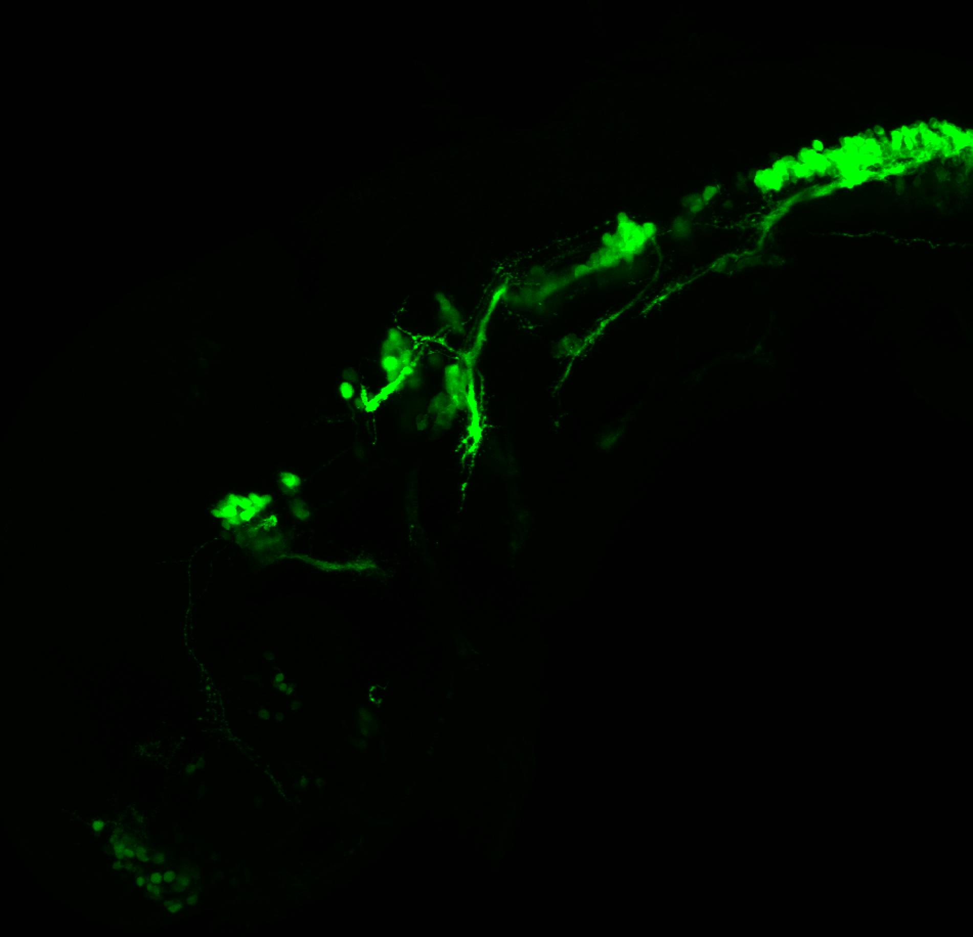 isl1:GFP 36hpf lateral