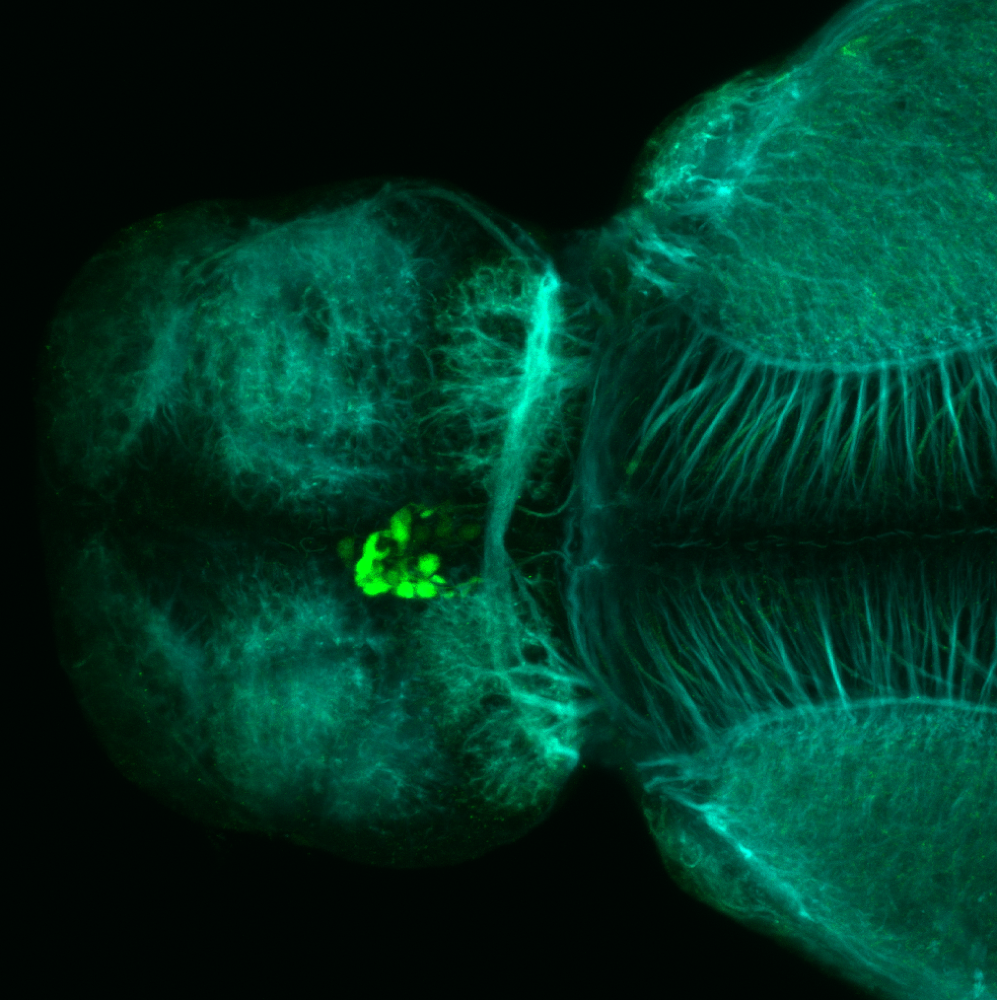 Tg(slc6a5:GFP) dorsal 4dpf with tubulin(cyan)