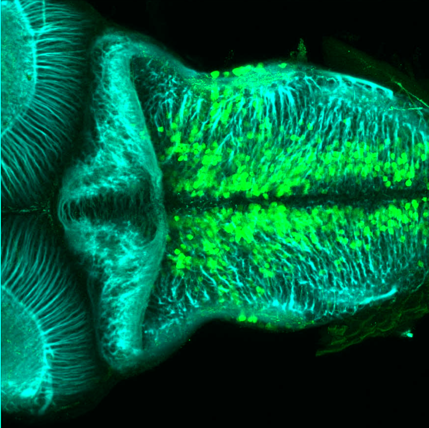 Tg(slc6a5:GFP) dorsal 4dpf hindbrain with tubulin(cyan)