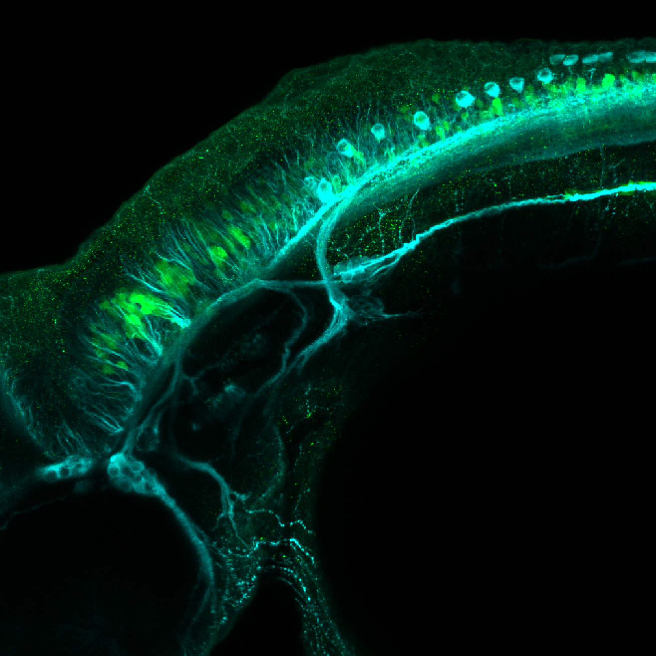 Tg(slc6a5:GFP) dorsal 48hpf with tubulin(cyan)