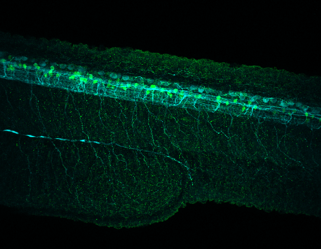 Tg(slc6a5:GFP) lateral 30hpf with tubulin(cyan)