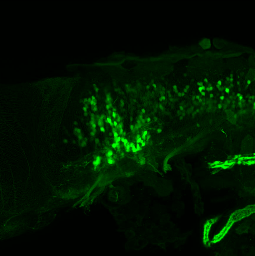 Tg(slc6a5:GFP) lateral 4dpf