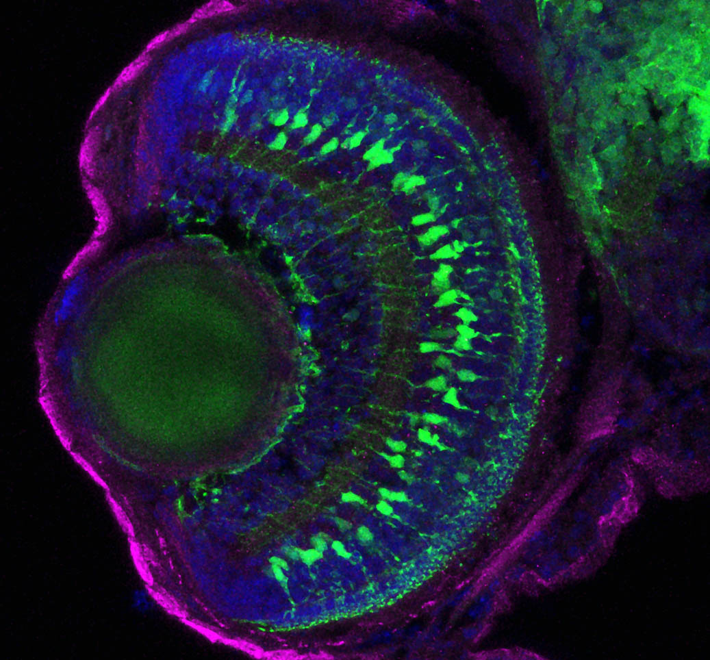 Müller glia are specifically labelled in the transgenic background  Tg(gfap:gfp).  We can use transgenic zebrafish or antibodies to specifically label and identify the glia or neurons in the retina. Cryosection of the zebrafish retina and immunohistochemistry for GFP.