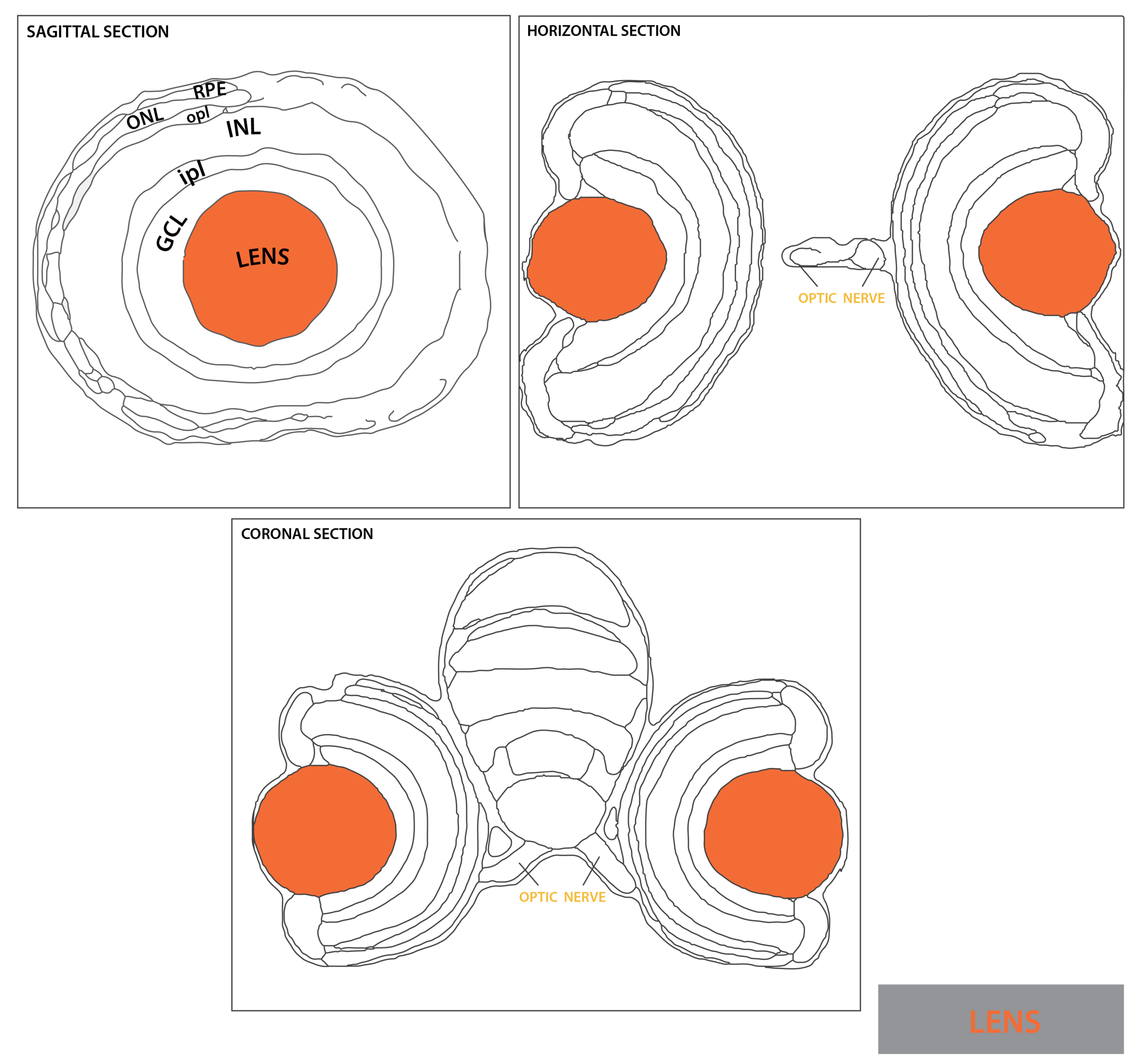 Schematic showing the position of the lens in sagittal, horizontal and coronal sections through the zebrafish brain.  Based on the anatomical segmentation of 3 day old zebrafish larval brain by Thomas Müller, Olaf Ronneberger, Wolfgang Driever and colleagues. For details see Ronneberger et al., Nat. Meth. 2012 and   http://vibez.informatik.uni-freiburg.de     Abbreviations: GCL, ganglion cell layer; INL, inner nuclear layer ; ipl, inner plexiform layer ; ONL, outer nuclear layer ; opl, outer plexiform layer; RPE, retinal pigmented epithelium.