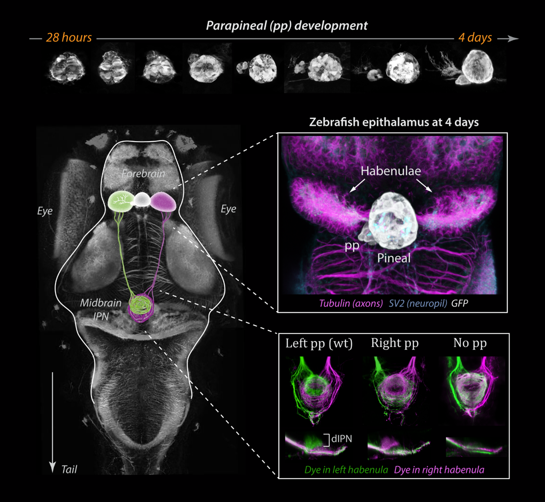 Figure 1: The parapineal emerges from the pineal during zebrafish embryogenesis, as shown by confocal images of a transgenic line with GFP in the pineal complex (top pictures). The pineal complex lies at the midline of the epithalamus, flanked by left (green on the scheme) and right (magenta on the scheme) habenulae. The habenulae are innervated by the parapineal and themselves send neuronal projections to the midbrain interpeduncular nucleus (IPN). The side of the parapineal, on the left in wild-type (wt), determines which habenula acquires a left-type identity projecting to the dorsal part of the IPN (dIPN).