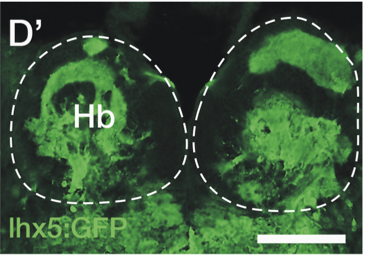 transverse section through the habenula of an adult Tg(lhx5:GFP) zebrafish