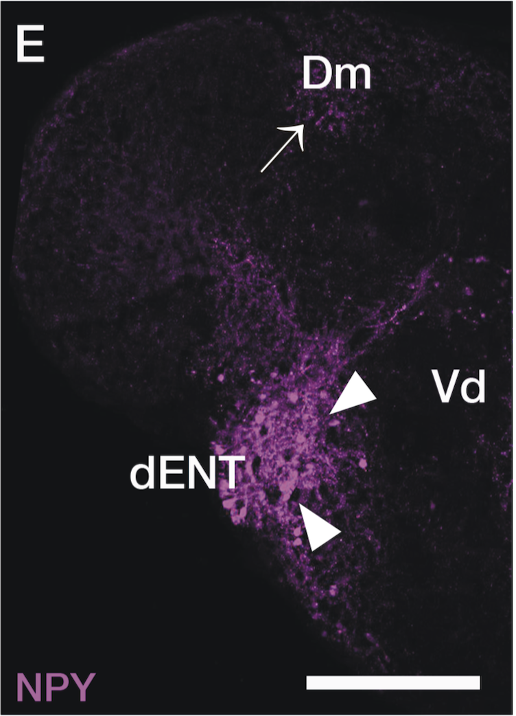 transverse section through adult telencephalon labelled with anti-NPY antibody.