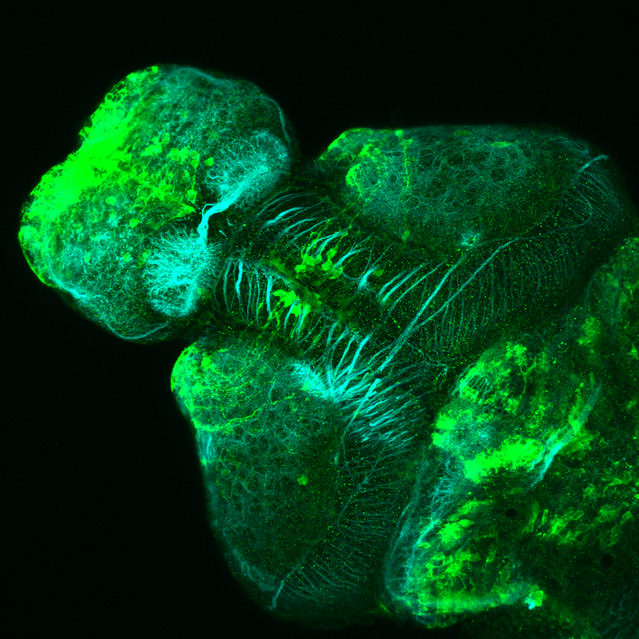 Et(CLG-YFP)smb750Et 4dpf dorsal with acetylated tubulin(cyan).