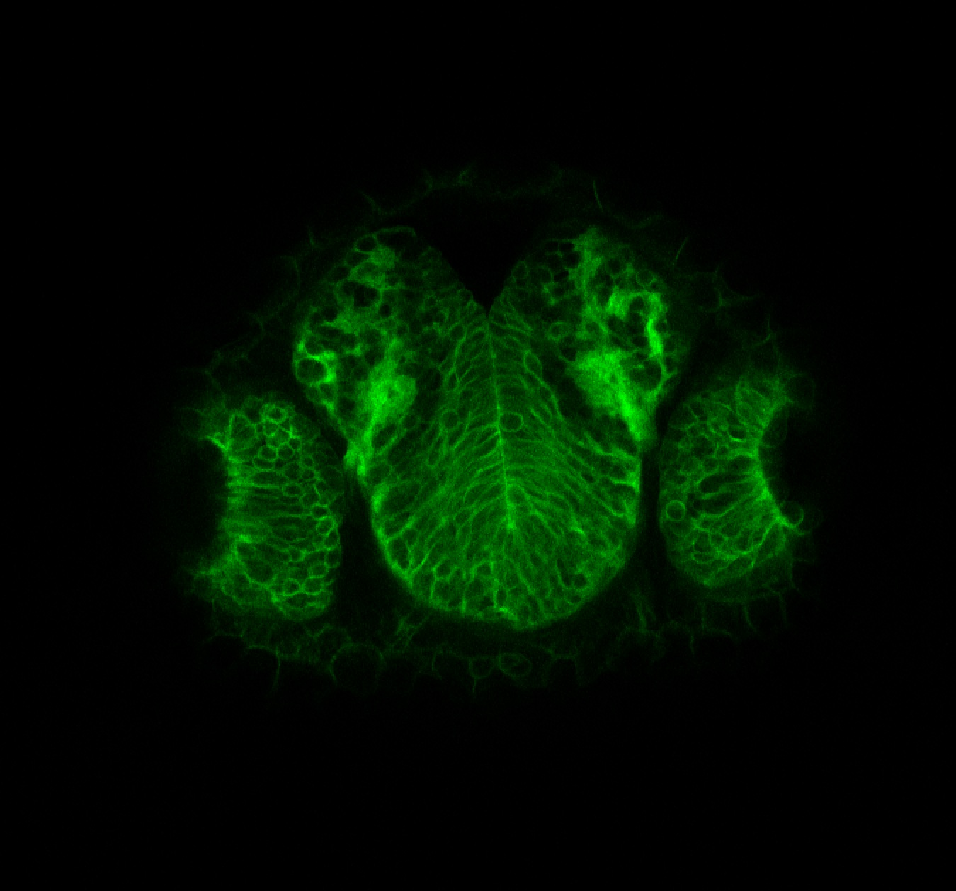 Tg(-8.0cldnb:lynGFP)zf106 2dpf frontal transverse section through the telencephalon