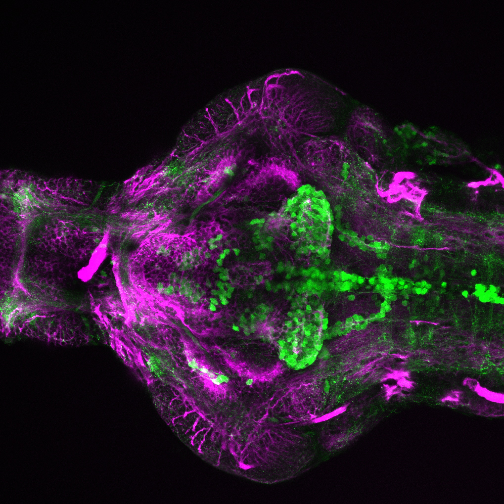 4dpf Ventral view of ETvmat2:GFP with acetylated tubulin(magenta)..