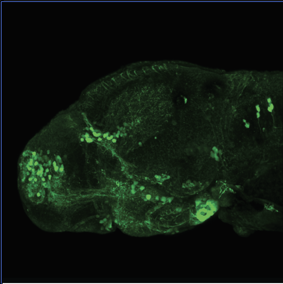 4dpf Lateral view of ETvmat2:GFP