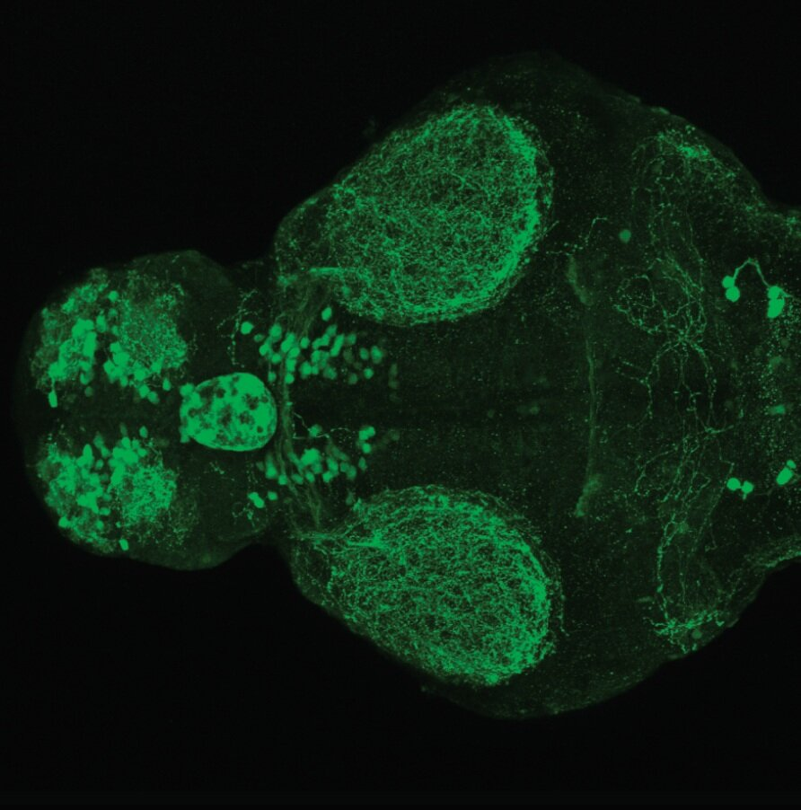 4dpf dorsal view of ETvmat2:GFP.