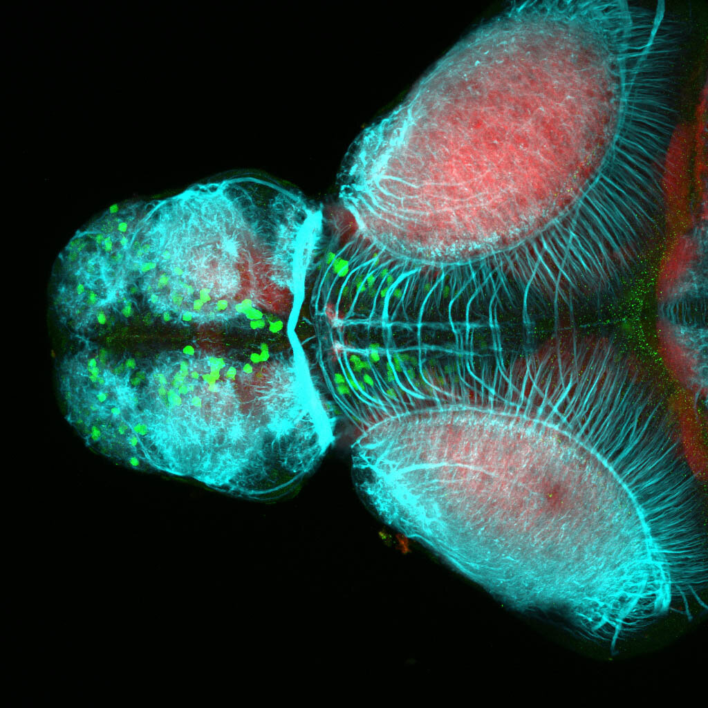 5dpf dorsal view of ETvmat2:GFP forbrain with acetylated tubulin(cyan) and SV2(red).