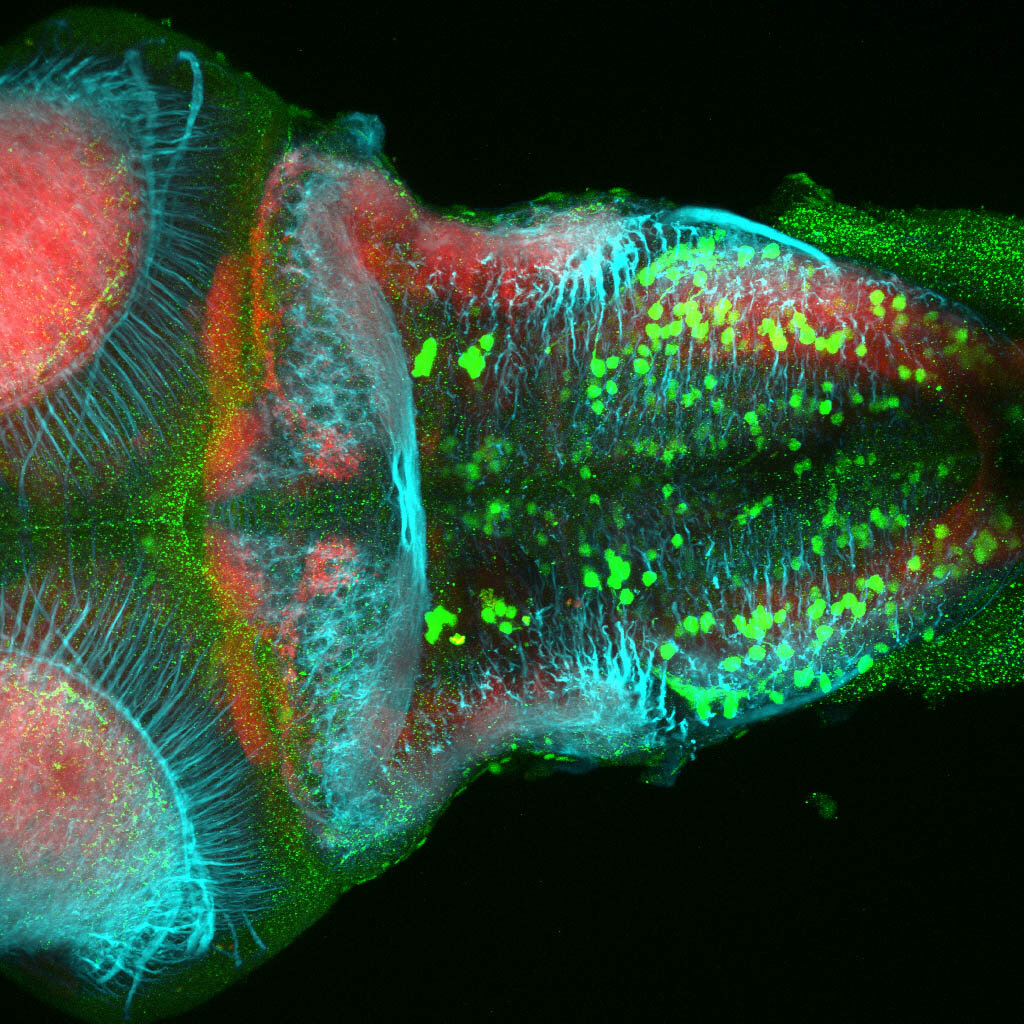 dpf dorsal view of ETvmat2:GFP hindbrain with acetylated tubulin(cyan) and SV2(red).