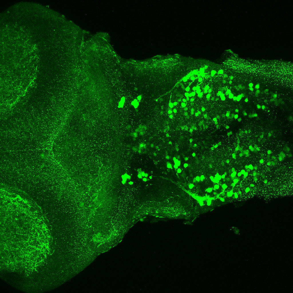5dpf dorsal view of ETvmat2:GFP hindbrain.
