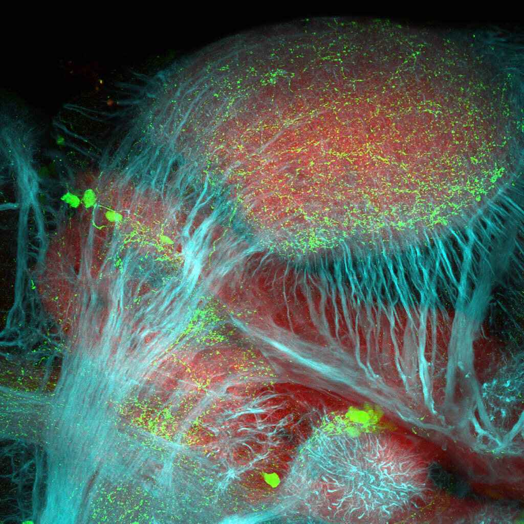 5dpf Lateral view of ETvmat2:GFP diencephalon with acetylated tubulin(cyan) and SV2(red).