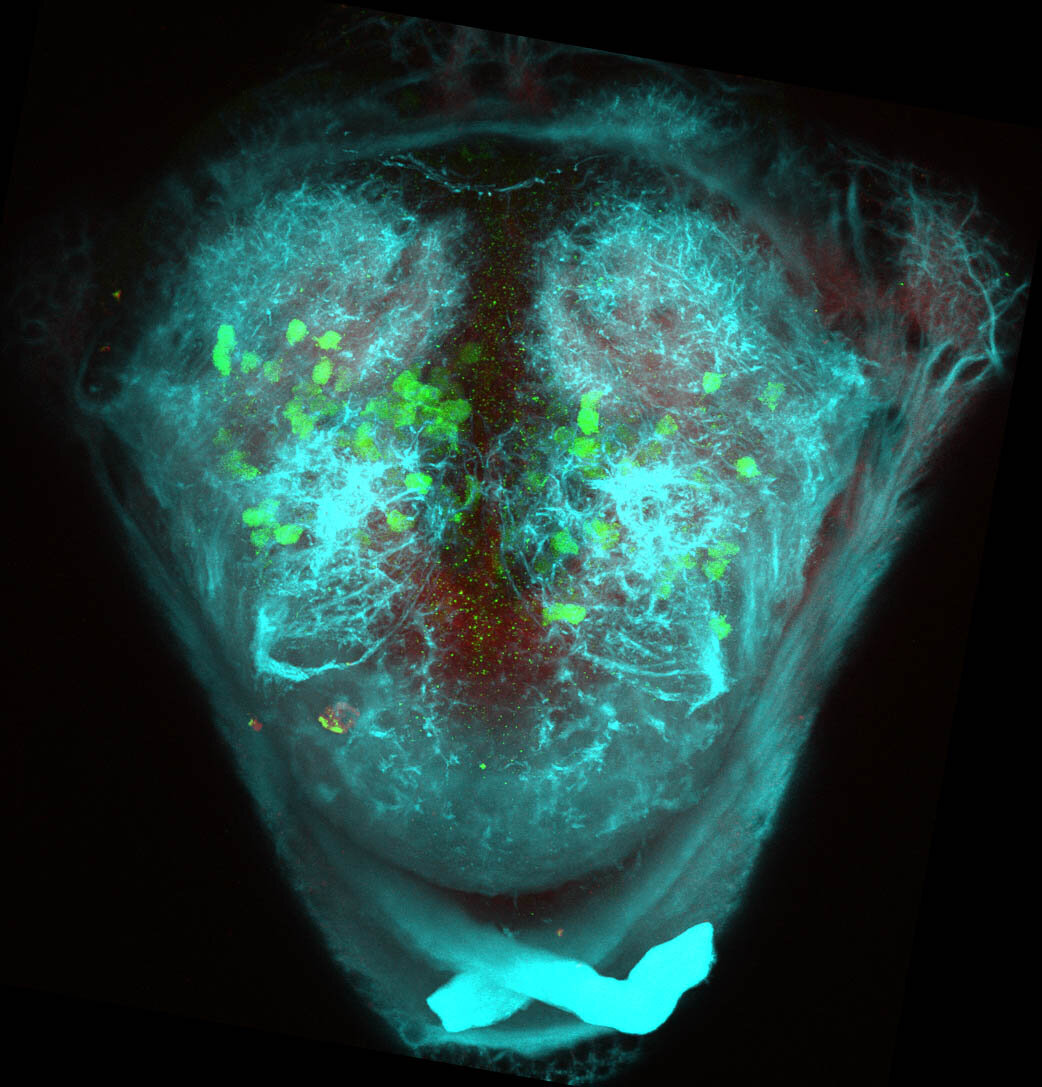 5dpf Frontal view of ETvmat2:GFP with acetylated tubulin(cyan) and SV2(red).