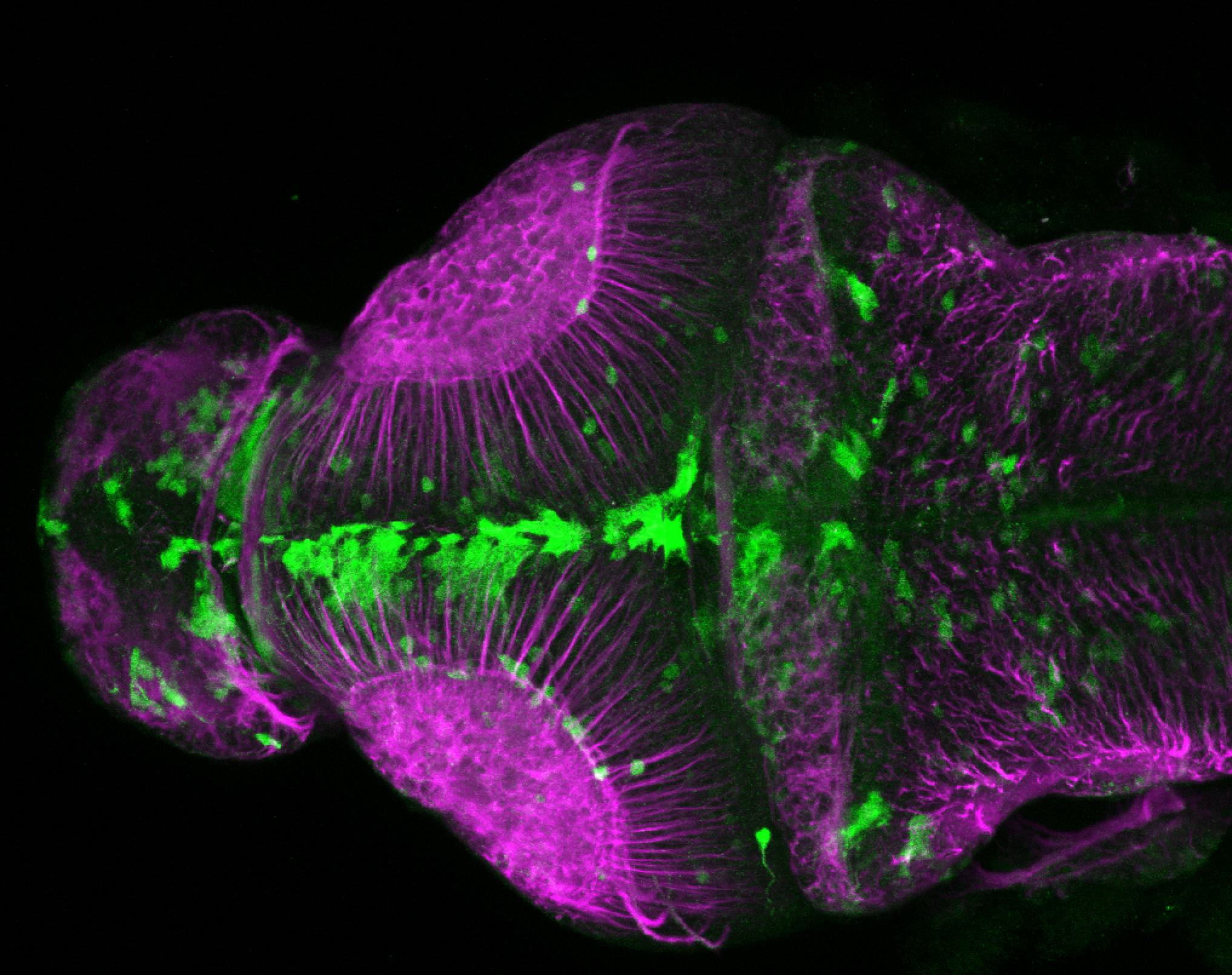 xeom:GFP 3dpf dorsal with tubulin(magenta)