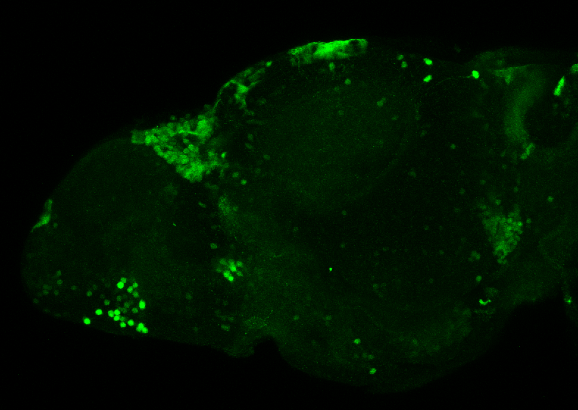 xeom:GFP 5dpf lateral